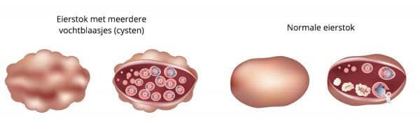 Polycystic ovary and normal ovary differences. Isolated white bacground